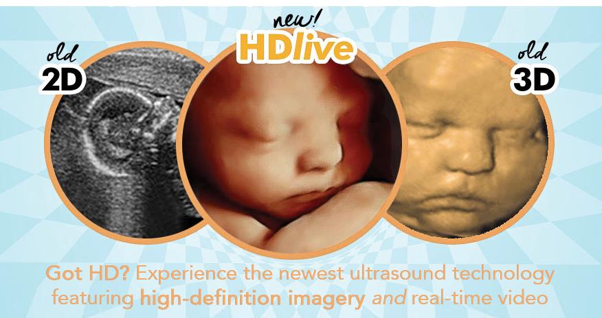 new hd live high definition 3d 4d ultrasound sarasota florida 4d
